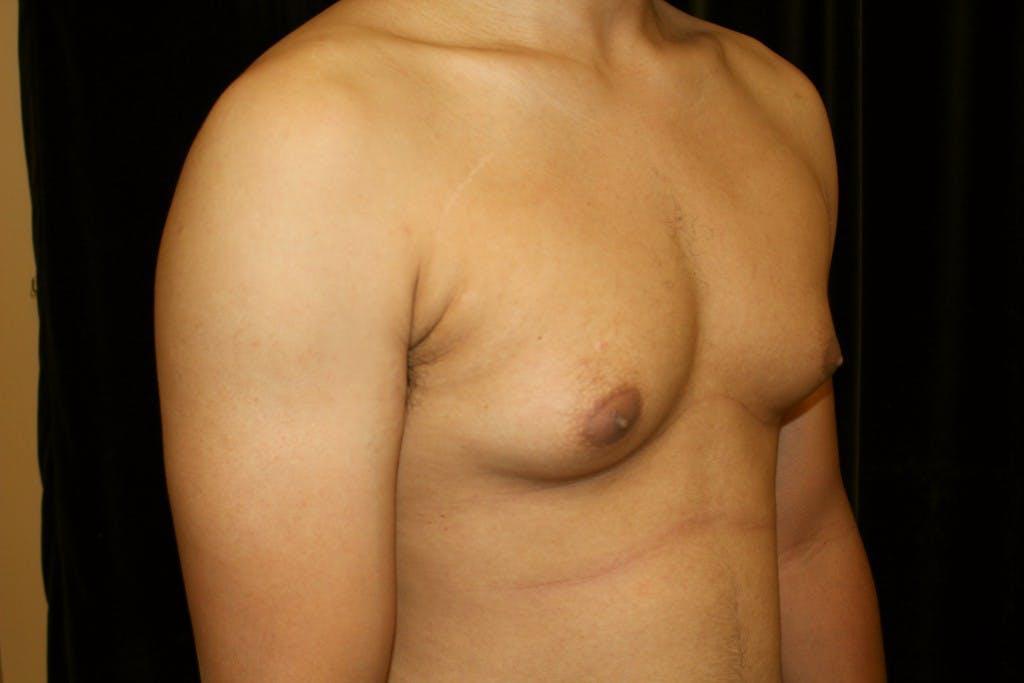 Gynecomastia Gallery - Patient 39245533 - Image 5