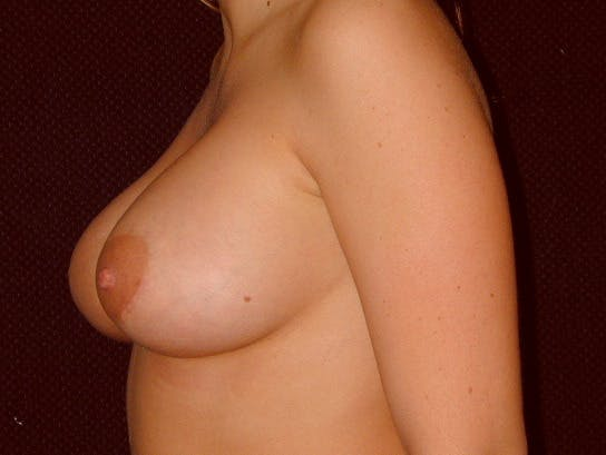 Breast Augmentation Gallery - Patient 39245534 - Image 8