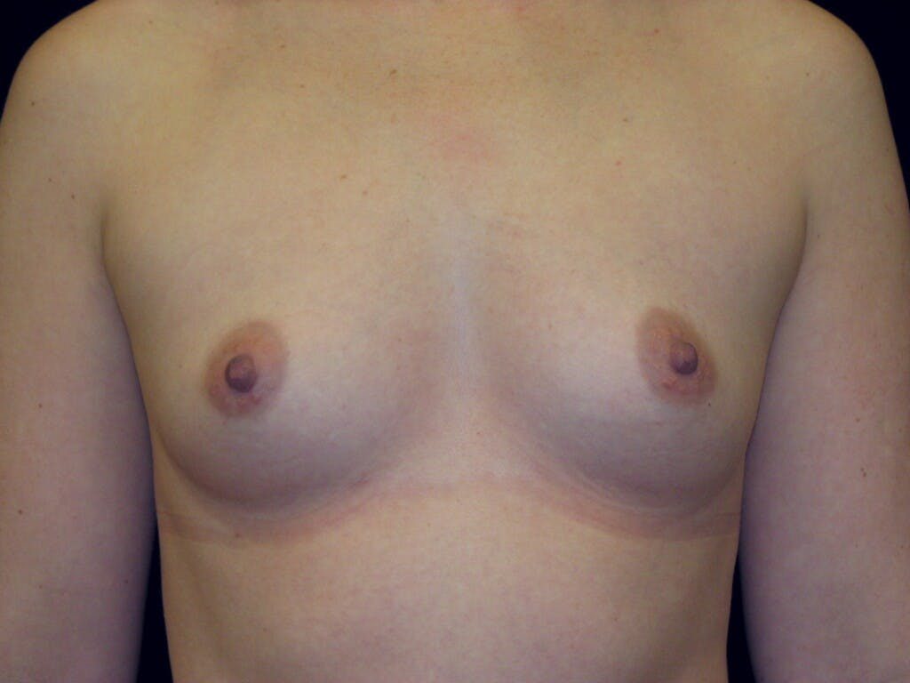 Breast Augmentation Gallery - Patient 39245541 - Image 1