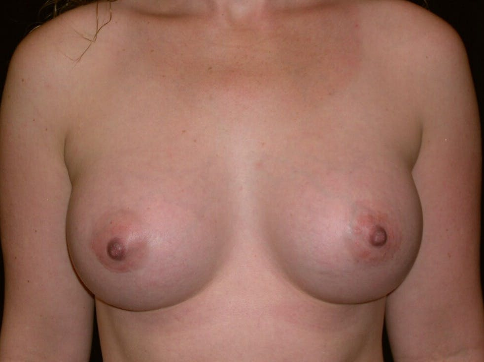 Breast Augmentation Gallery - Patient 39245541 - Image 2