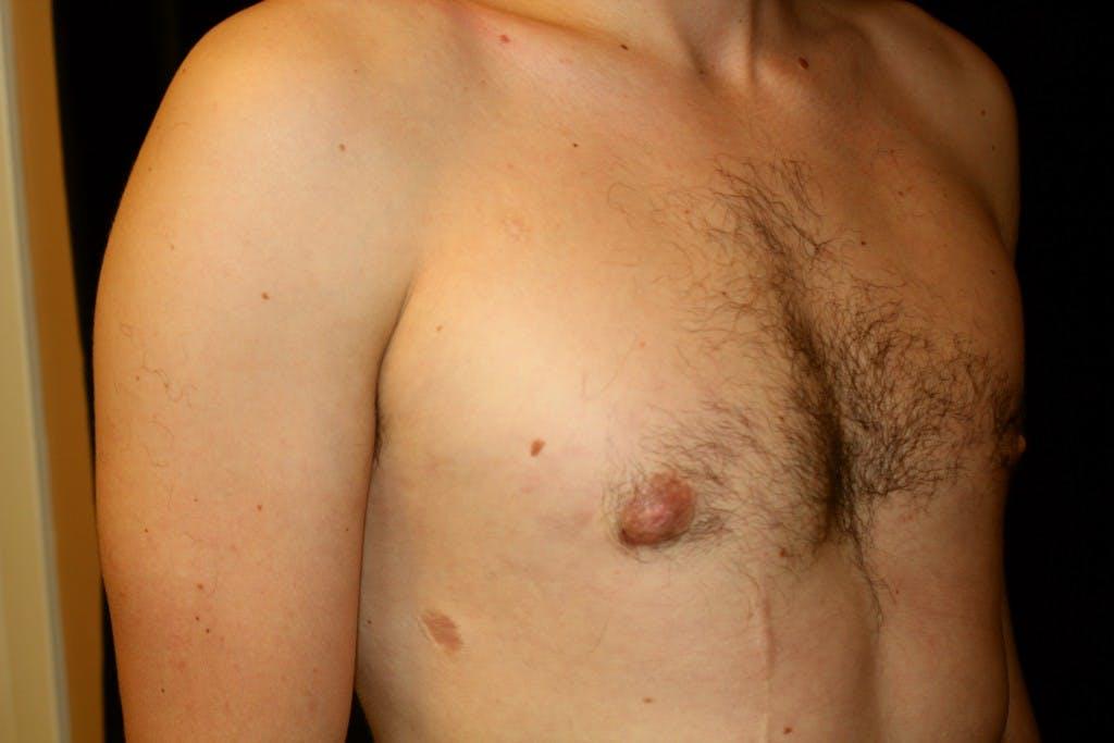 Gynecomastia Gallery - Patient 39245538 - Image 4