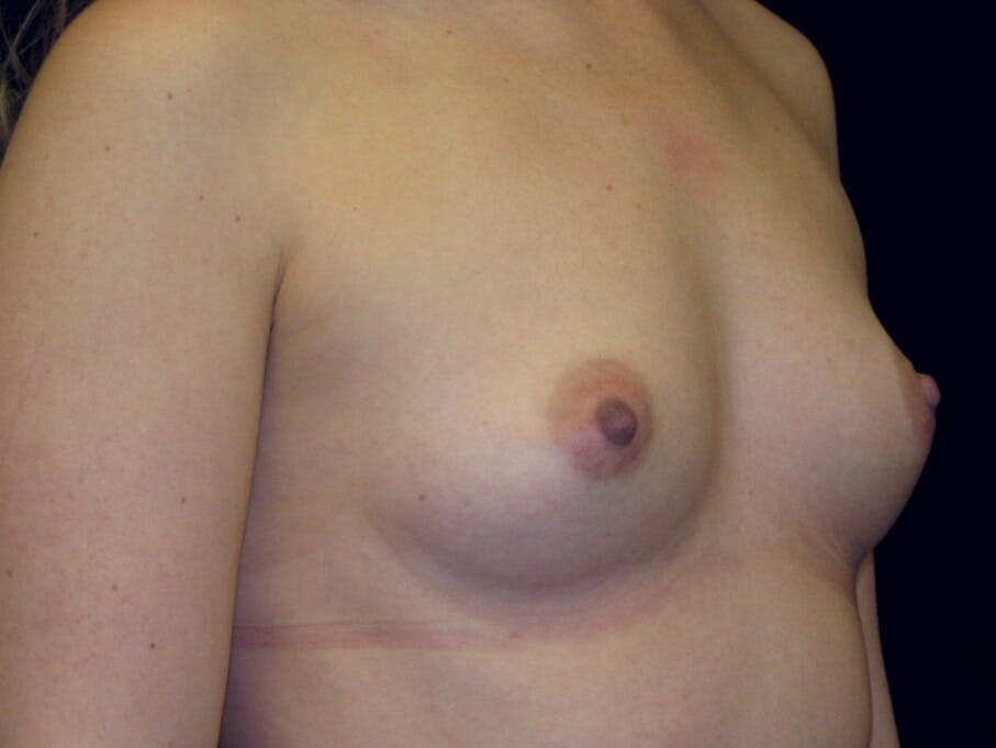 Breast Augmentation Gallery - Patient 39245541 - Image 3