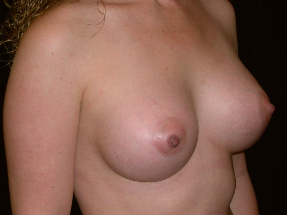 Breast Augmentation Gallery - Patient 39245541 - Image 4