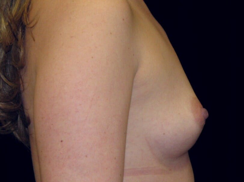 Breast Augmentation Gallery - Patient 39245541 - Image 5