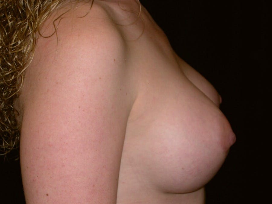 Breast Augmentation Gallery - Patient 39245541 - Image 6