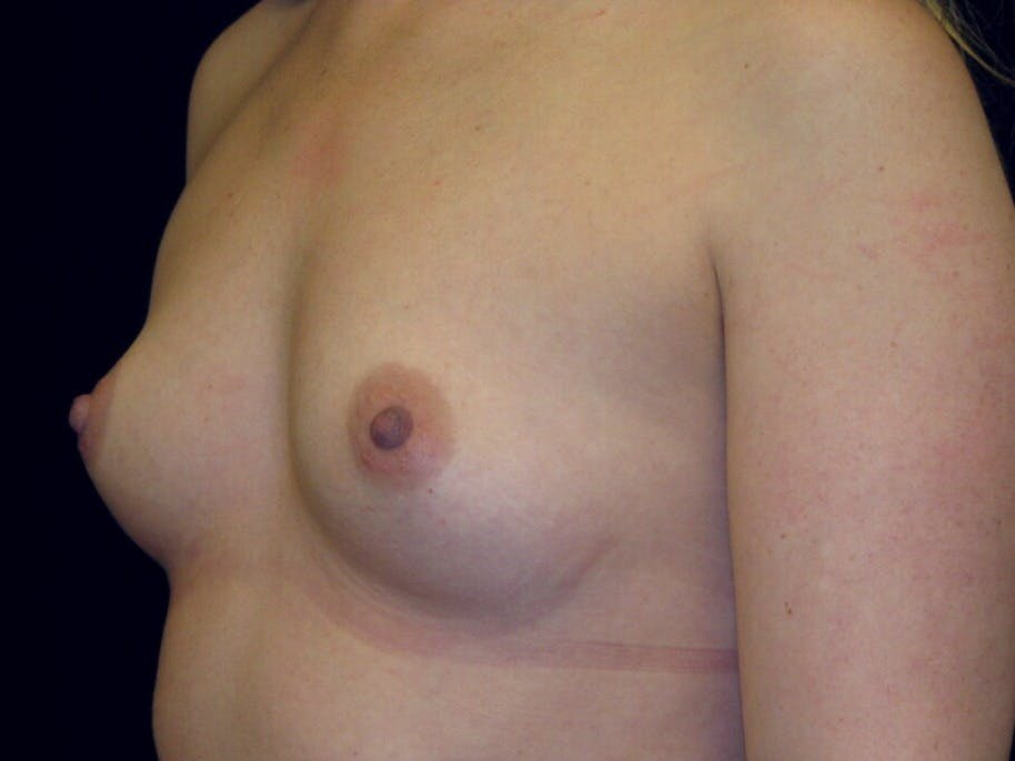 Breast Augmentation Gallery - Patient 39245541 - Image 7