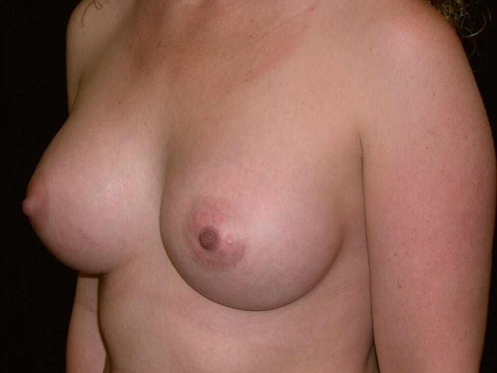 Breast Augmentation Gallery - Patient 39245541 - Image 8