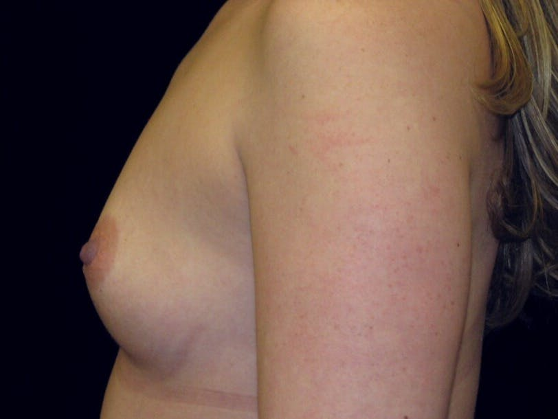 Breast Augmentation Gallery - Patient 39245541 - Image 9