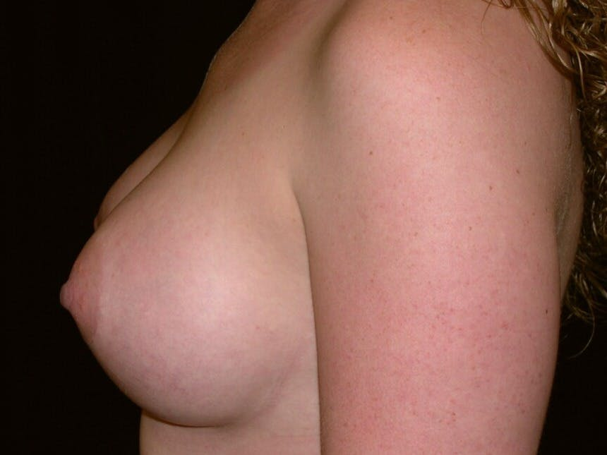 Breast Augmentation Gallery - Patient 39245541 - Image 10