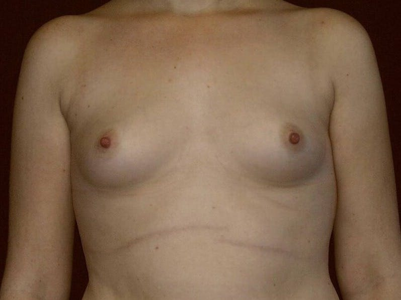 Breast Augmentation Gallery - Patient 39245547 - Image 1