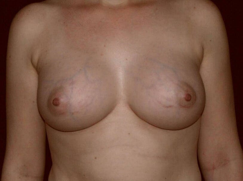 Breast Augmentation Gallery - Patient 39245547 - Image 2