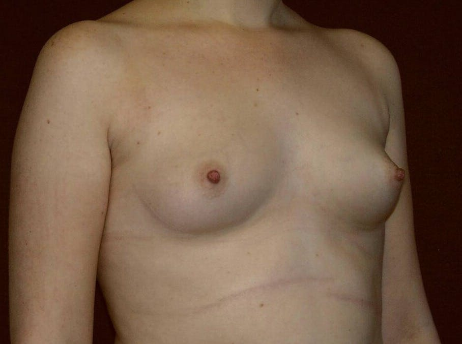 Breast Augmentation Gallery - Patient 39245547 - Image 3