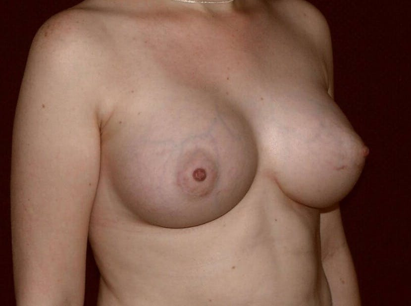 Breast Augmentation Gallery - Patient 39245547 - Image 4