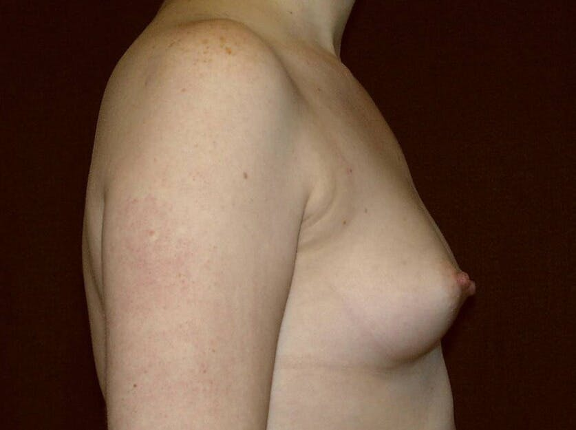 Breast Augmentation Gallery - Patient 39245547 - Image 5