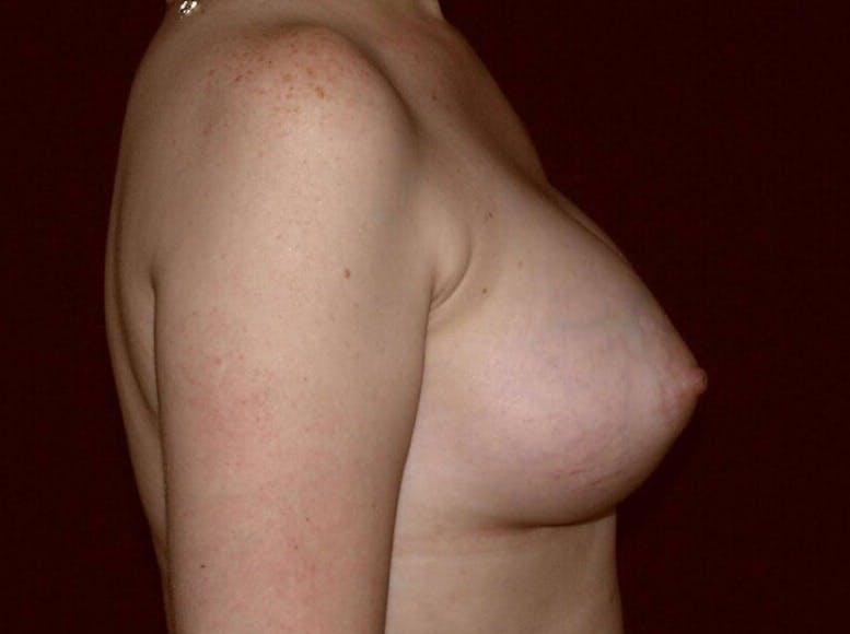 Breast Augmentation Gallery - Patient 39245547 - Image 6