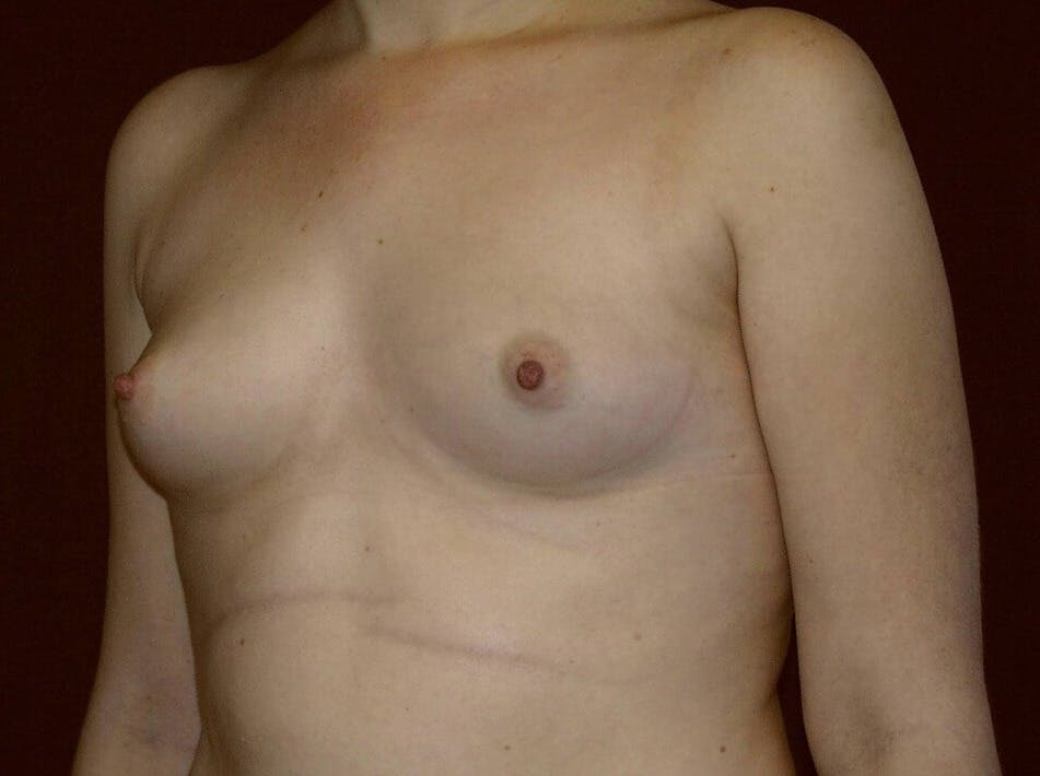 Breast Augmentation Gallery - Patient 39245547 - Image 7