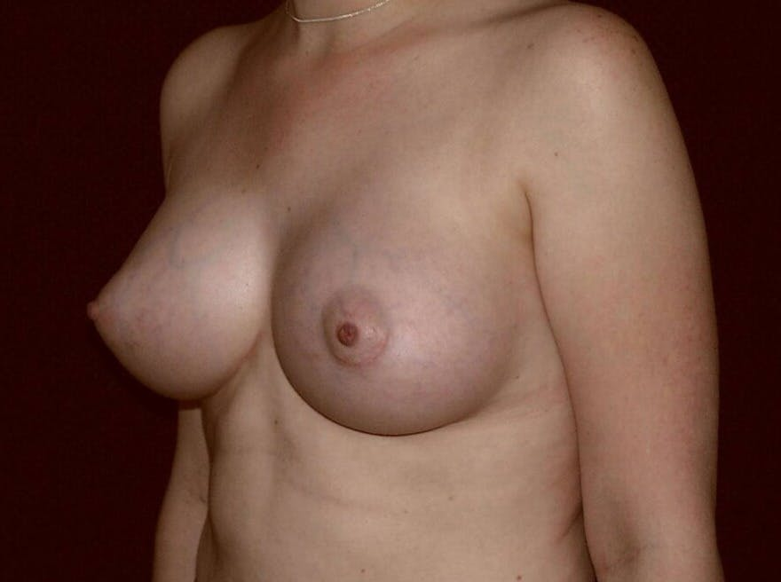 Breast Augmentation Gallery - Patient 39245547 - Image 8