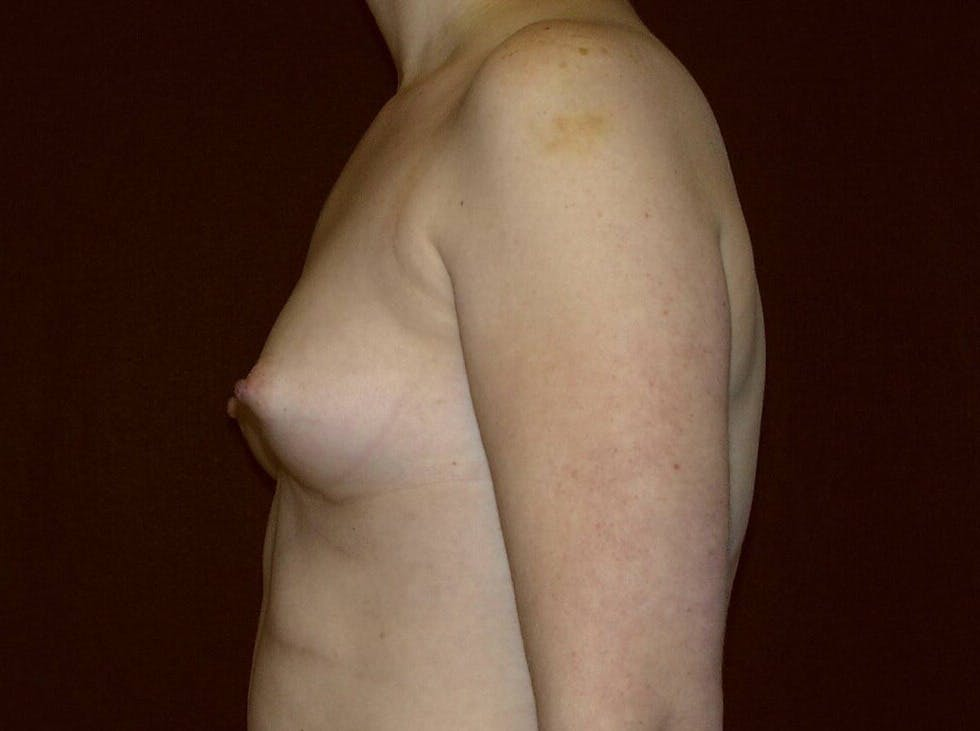 Breast Augmentation Gallery - Patient 39245547 - Image 9