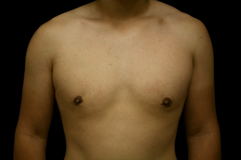 Gynecomastia Gallery - Patient 39245548 - Image 2