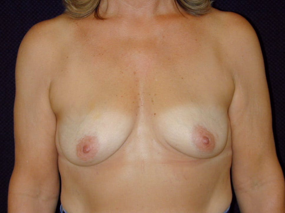 Breast Augmentation Gallery - Patient 39245550 - Image 1