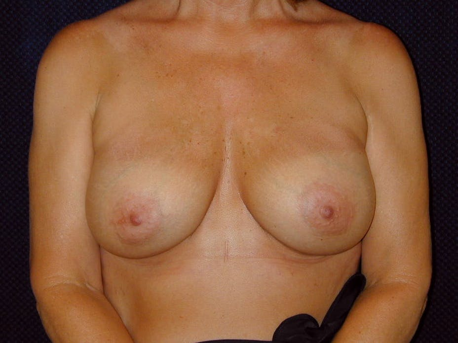 Breast Augmentation Gallery - Patient 39245550 - Image 2