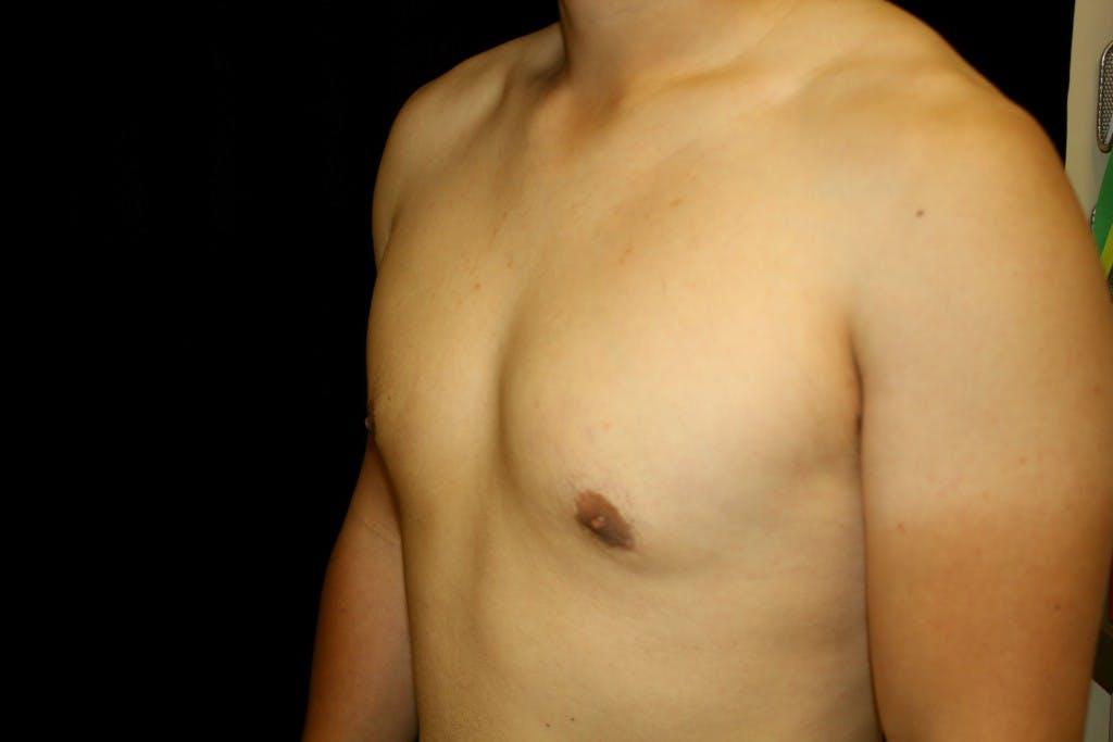 Gynecomastia Gallery - Patient 39245548 - Image 6
