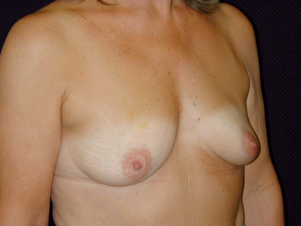 Breast Augmentation Gallery - Patient 39245550 - Image 3