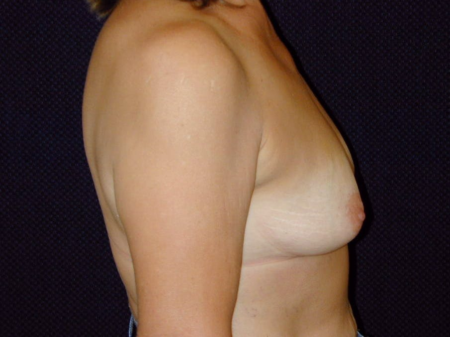 Breast Augmentation Gallery - Patient 39245550 - Image 5