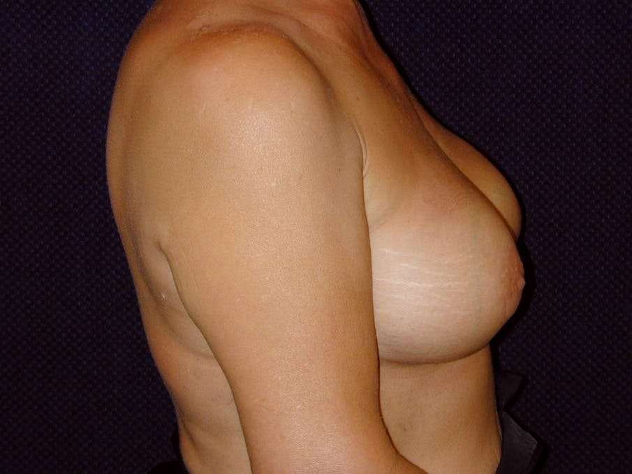 Breast Augmentation Gallery - Patient 39245550 - Image 6