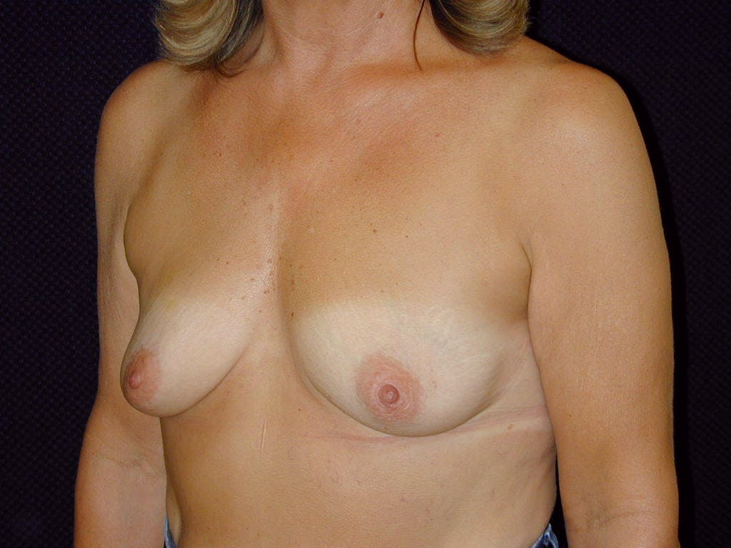 Breast Augmentation Gallery - Patient 39245550 - Image 7