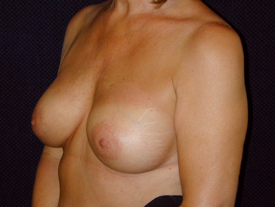 Breast Augmentation Gallery - Patient 39245550 - Image 8