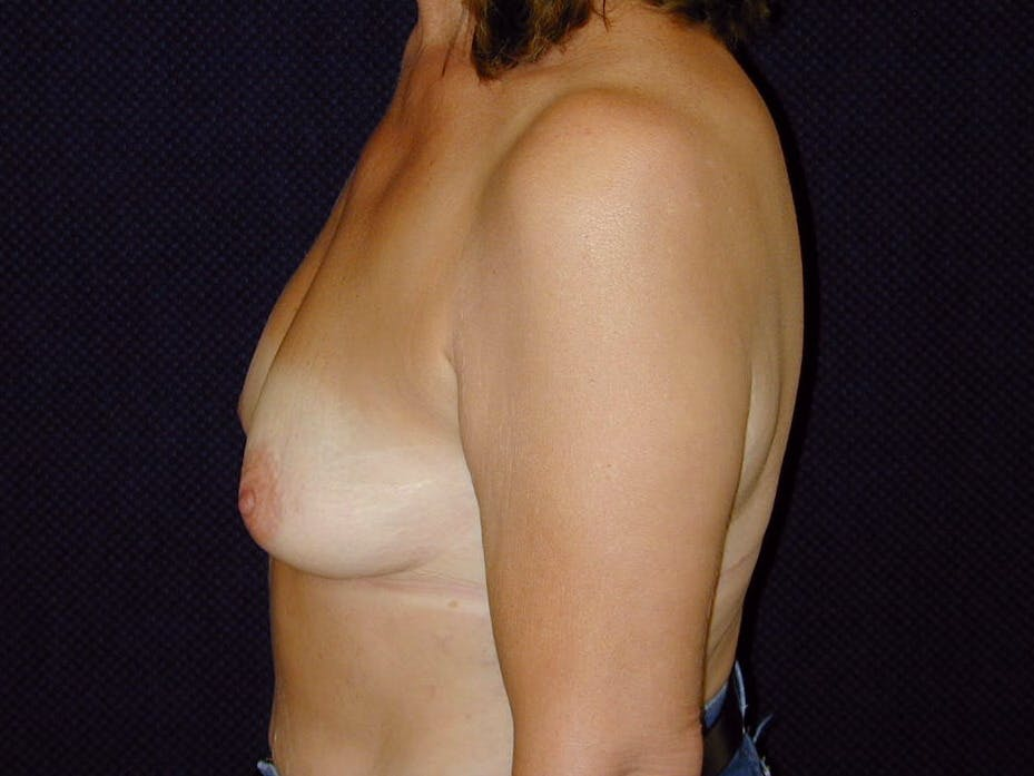 Breast Augmentation Gallery - Patient 39245550 - Image 9