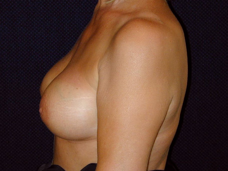 Breast Augmentation Gallery - Patient 39245550 - Image 10