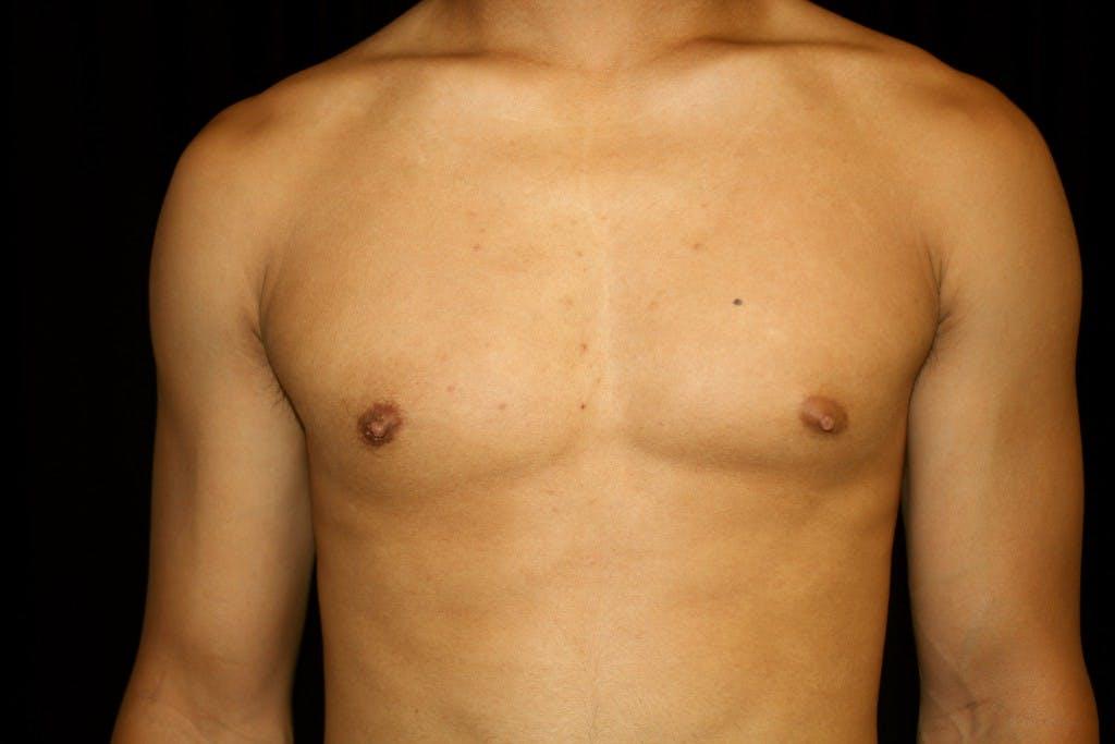 Gynecomastia Gallery - Patient 39245551 - Image 2