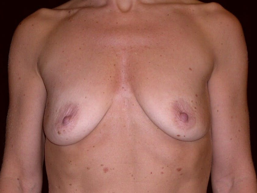 Breast Augmentation Gallery - Patient 39245553 - Image 1