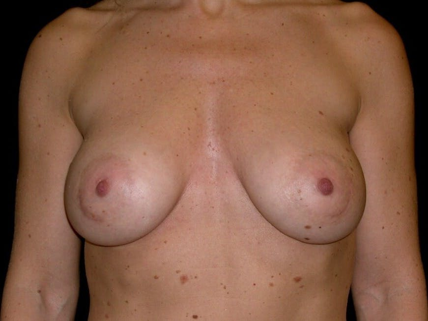 Breast Augmentation Gallery - Patient 39245553 - Image 2