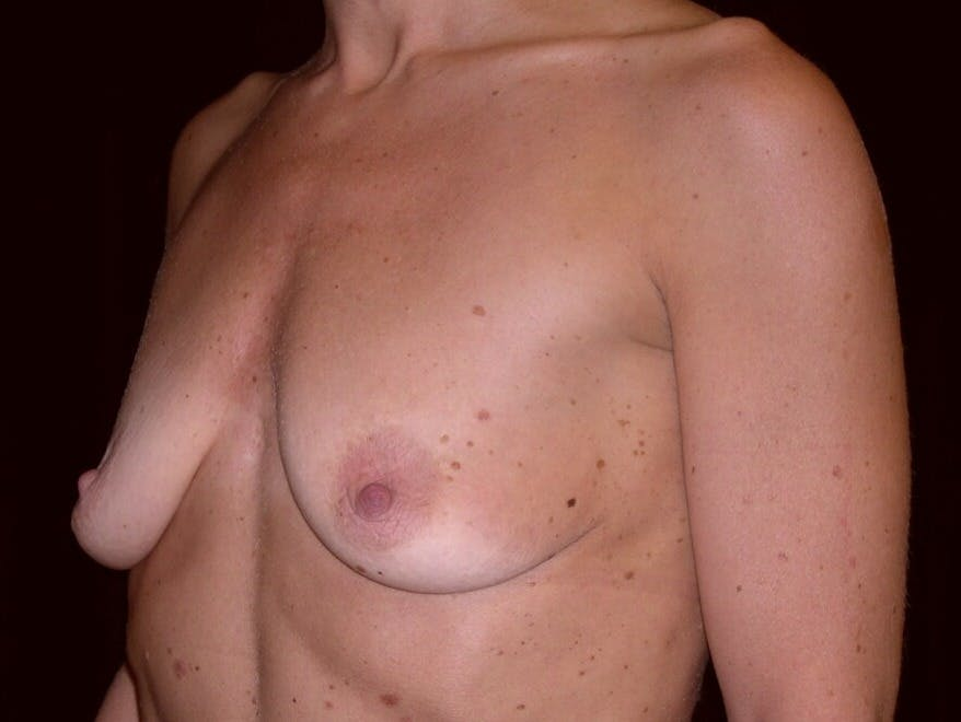 Breast Augmentation Gallery - Patient 39245553 - Image 3