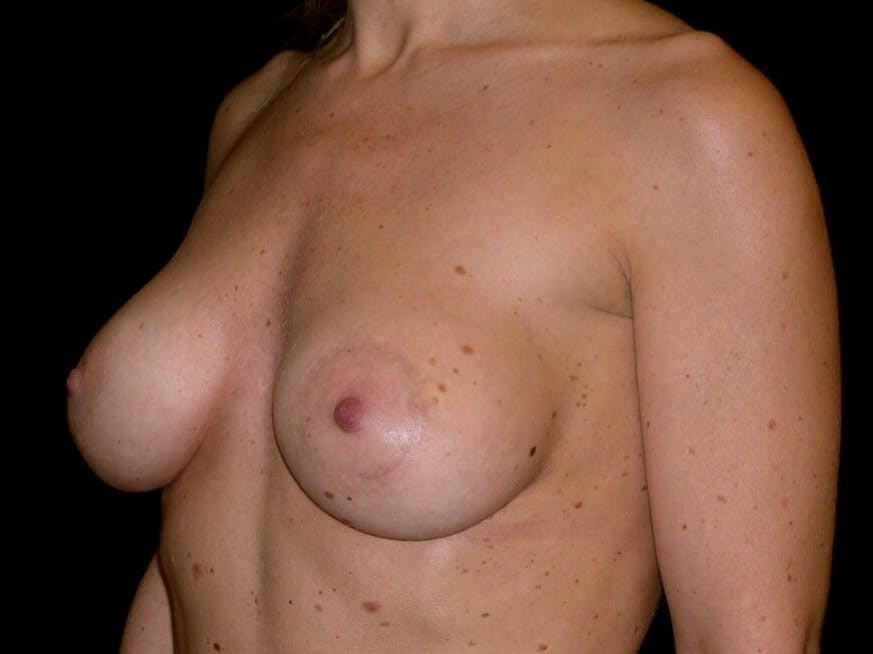Breast Augmentation Gallery - Patient 39245553 - Image 4