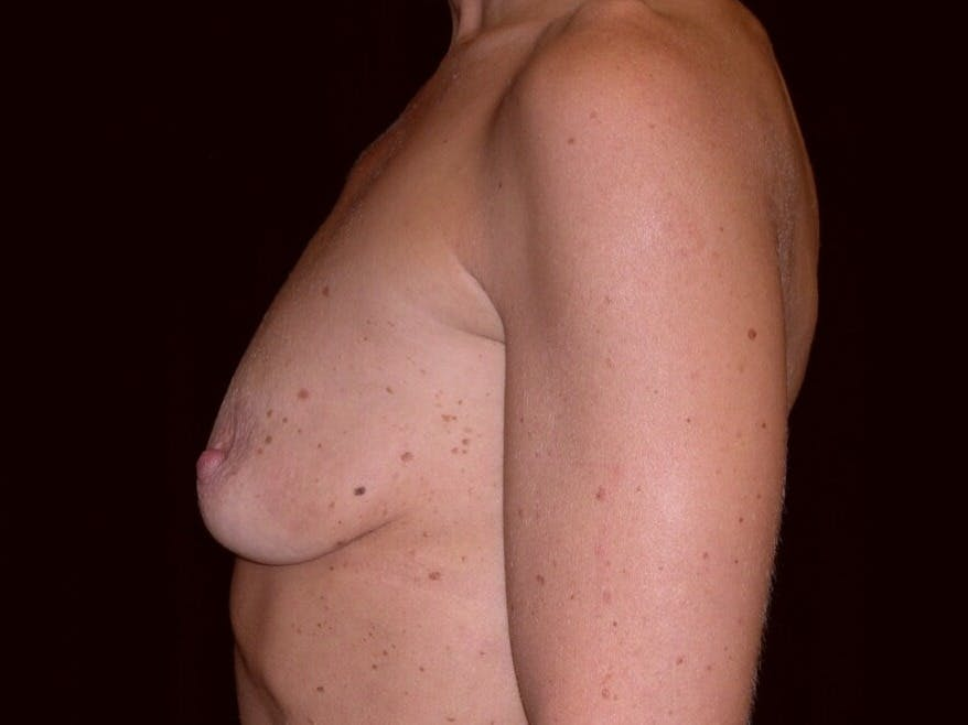 Breast Augmentation Gallery - Patient 39245553 - Image 5