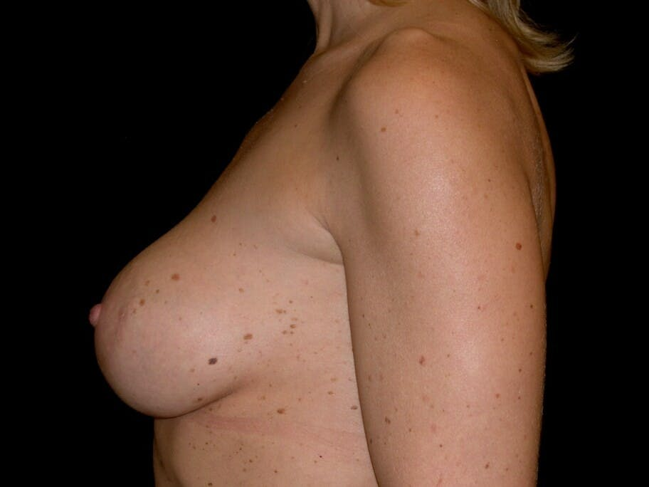 Breast Augmentation Gallery - Patient 39245553 - Image 6