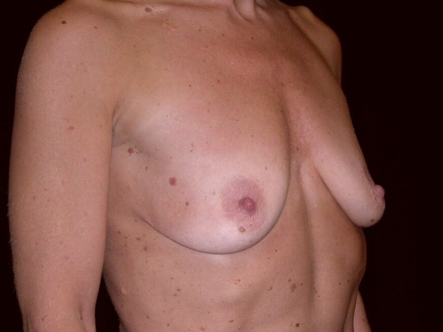 Breast Augmentation Gallery - Patient 39245553 - Image 7