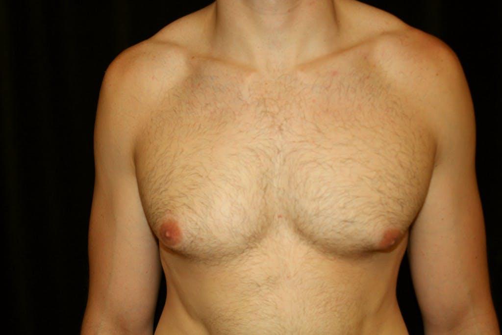 Gynecomastia Gallery - Patient 39245554 - Image 1