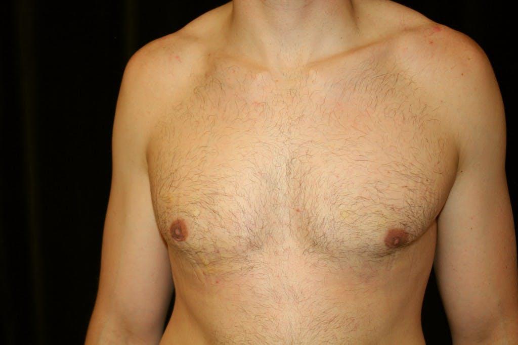 Gynecomastia Gallery - Patient 39245554 - Image 2
