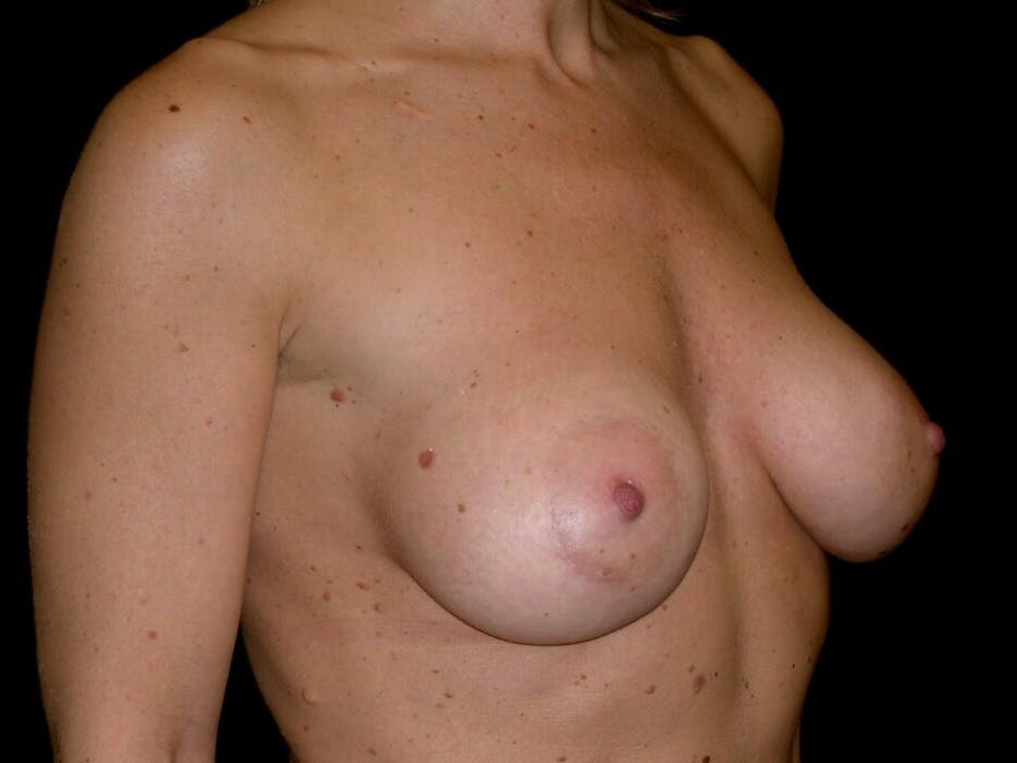 Breast Augmentation Gallery - Patient 39245553 - Image 8
