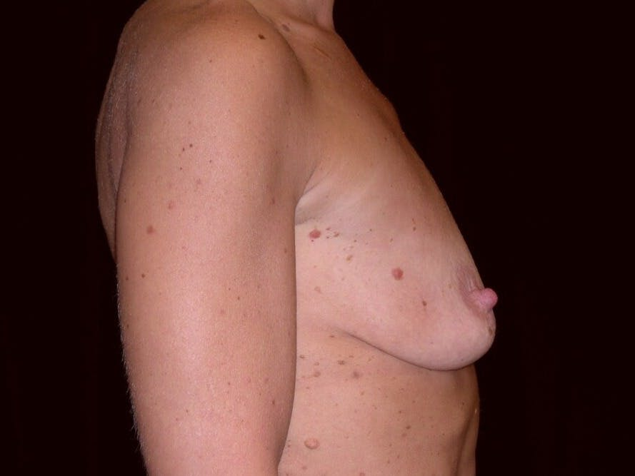 Breast Augmentation Gallery - Patient 39245553 - Image 9