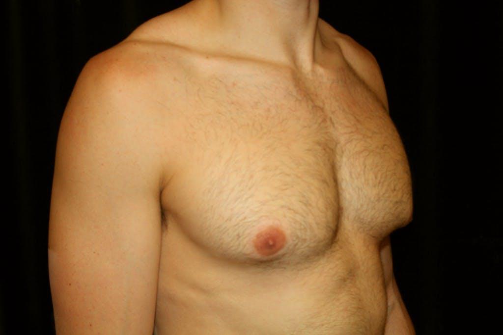 Gynecomastia Gallery - Patient 39245554 - Image 3