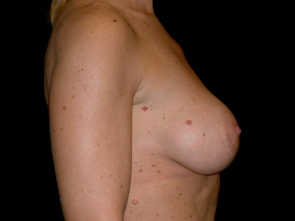 Breast Augmentation Gallery - Patient 39245553 - Image 10