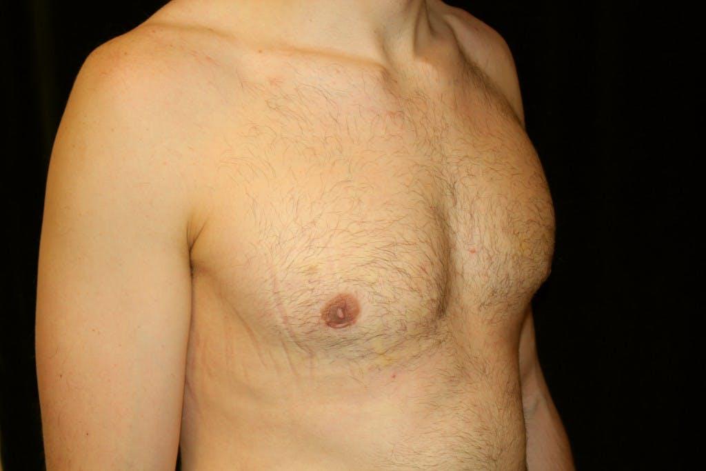 Gynecomastia Gallery - Patient 39245554 - Image 4