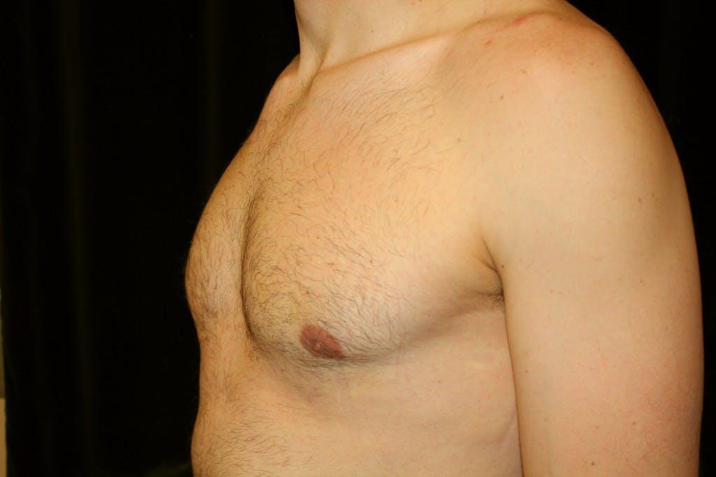 Gynecomastia Gallery - Patient 39245554 - Image 6