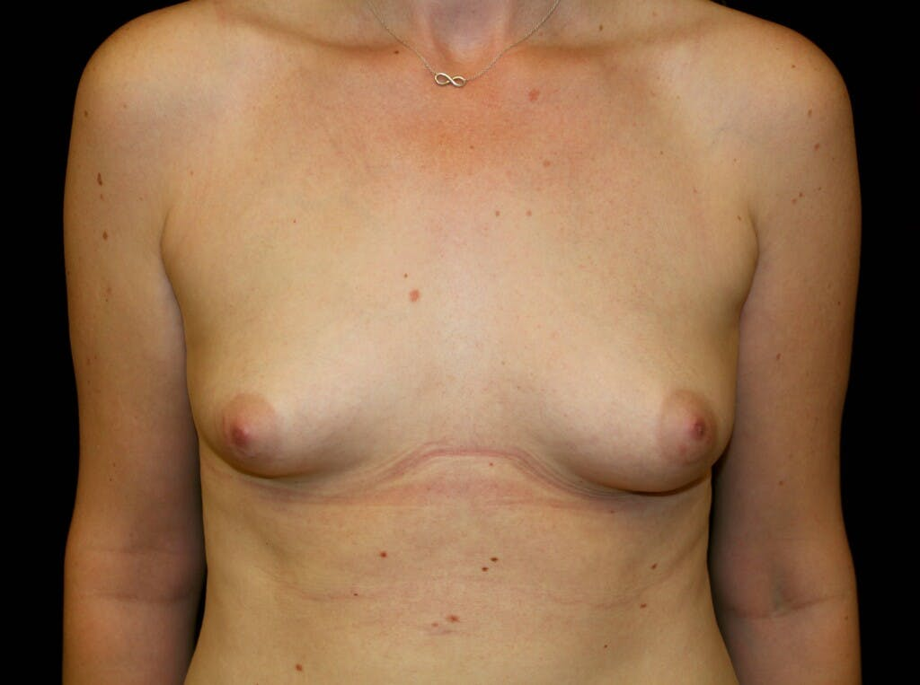 Breast Augmentation Gallery - Patient 39245556 - Image 1